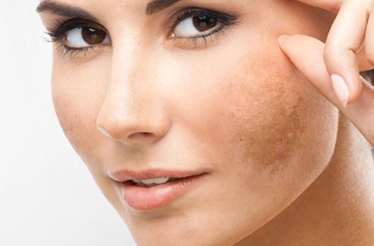 Nám da và sạm da là một trong những nỗi ám ảnh lớn nhất